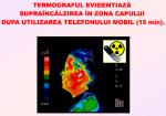 efecte negative  impact nociv radiatii electromagnetice nocive toxice telefon mobile, calculator, smartphone, cuptor microunde, boli creier, sanatate protejarea sanatatii de radiatii statul privitul la tv 5
