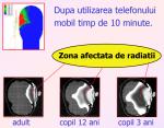 efecte negative impact nociv radiatii electromagnetice nocive toxice telefon mobile, calculator, smartphone, cuptor microunde, boli creier, sanatate protejarea sanatatii de radiatii statul privitul la tv 6