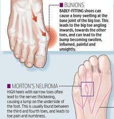 Pantofii cu toc dăunează sănătății. De ce poartă femeile tocuri și cât rău își fac. De ce sunt atrași bărbații de femeile pe tocuri sanatate incaltari 2
