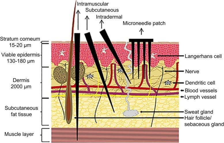 microneedle-platform-vaccin-covid-01