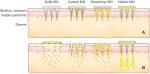 microneedle-platform-vaccin-covid-02